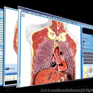 3d-nls_bioanalizador_com_pantalla-300x300