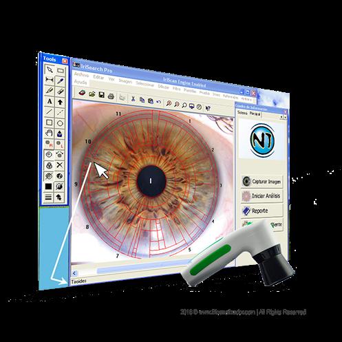 iridoscopio-12-mp_bioanalizador_com